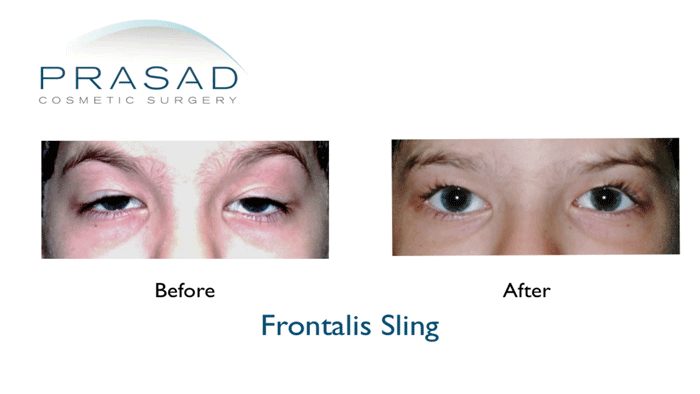 Drooping eyelid surgery before and after by NYC specialist Dr Prasad
