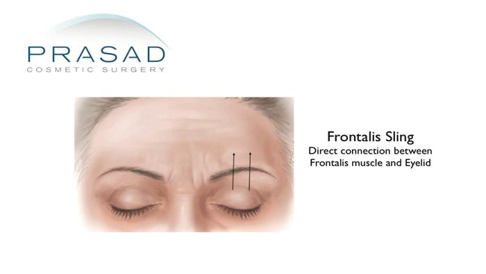 Frontalis sling diagram-Droopy eyelid