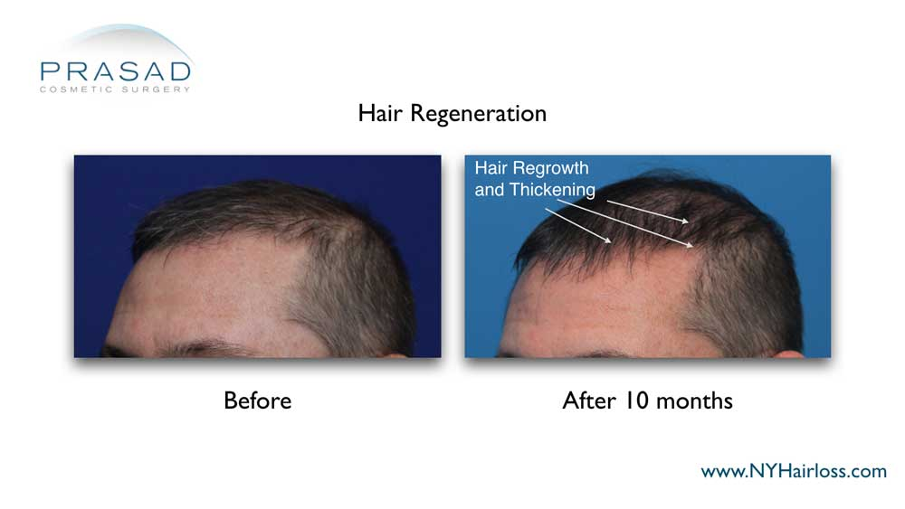 Before and 10 months after hair regeneration. Hair growth from dormant hair follicles at the frontal hairline and mid scalp are noticeable