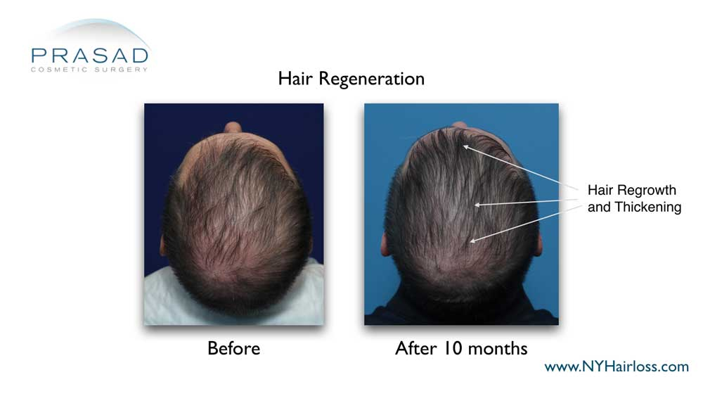 before and 10 months after hair regeneration. Hair regrowth and thickening 10 months after Hair Regeneration treatment