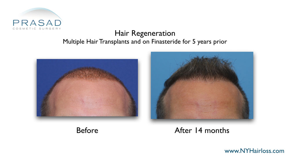 before and 14 months after hair regeneration. Patient had multiple hair transplant and on Finasteride prior to the treatment