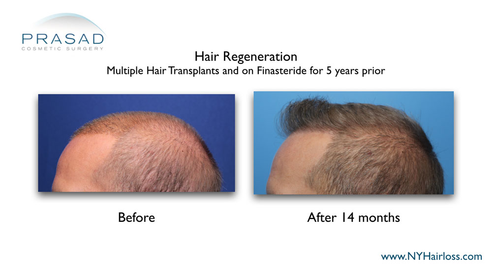 Before and 14 months after Hair Regeneration. Male patient left side view