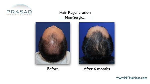 6 months after hair regeneration
