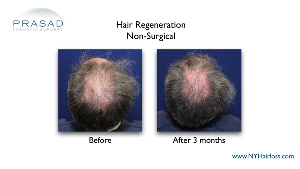 3 months after hair restoration treatment on crown area