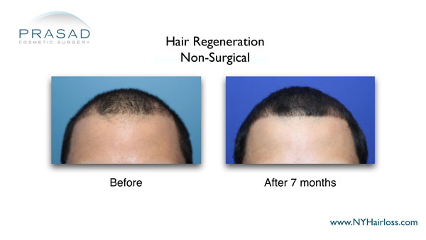 7 months after non-surgical hairloss treatment
