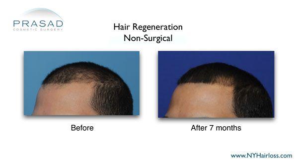 7 months after hair regeneration treatment
