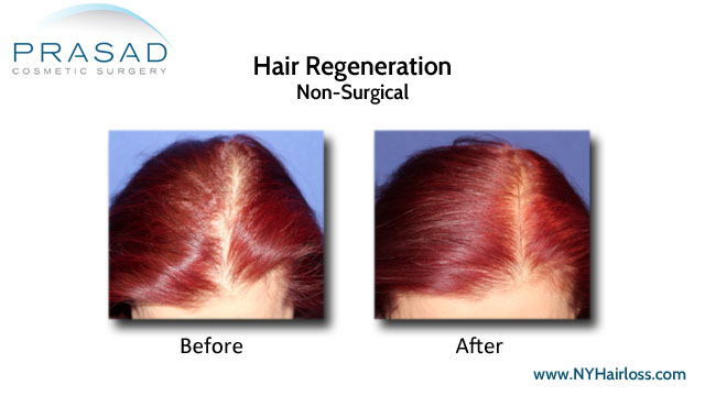 before and after Hair Regeneration treatment's effect on female pattern hair loss