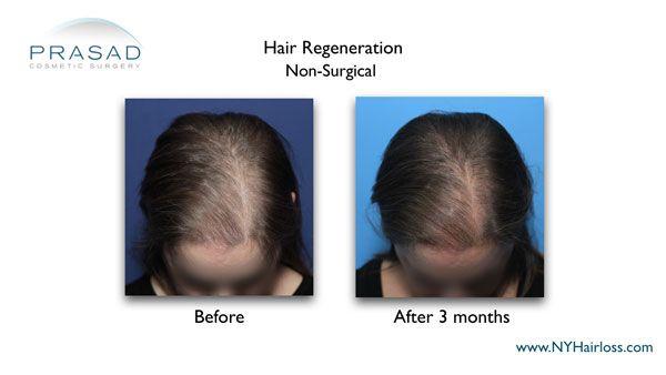 female pattern baldness treatment 3 months after