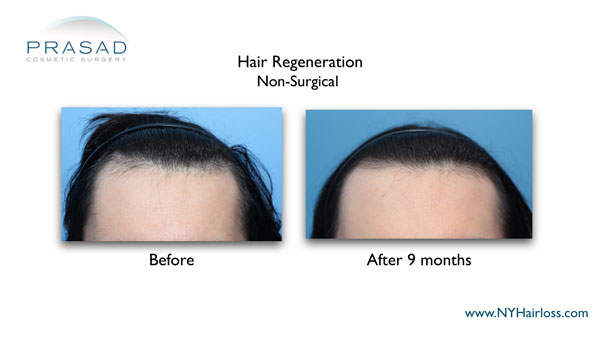 hair restoration on frontal and temporal areas