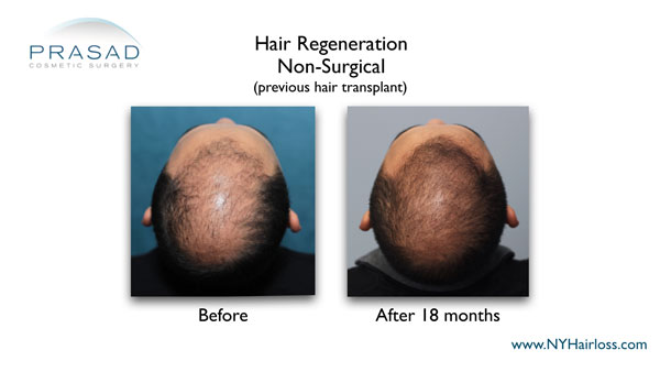 before and after Hair Regeneration treatment for patient who've had hair transplants
