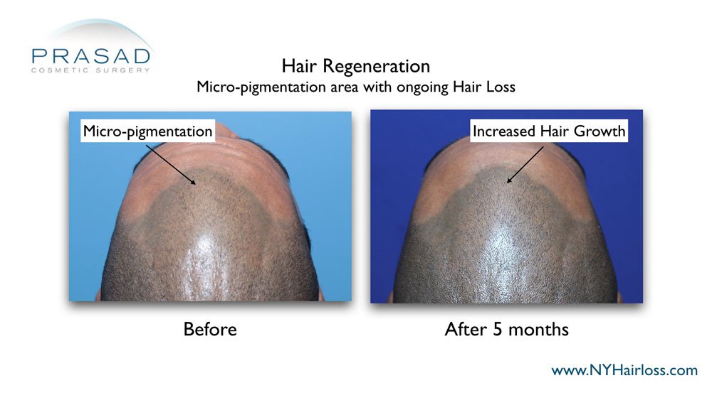 5 months after Hair Regeneration treatment scalp micropigmentation blend better with increased hair coverage