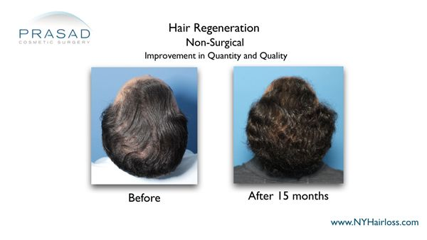 hair loss improvement after hair restoration