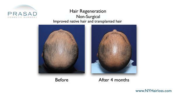 hair regeneration in male