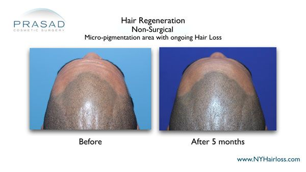 improvement on scalp with hair regeneration