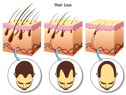 stages of Hair loss process illustration