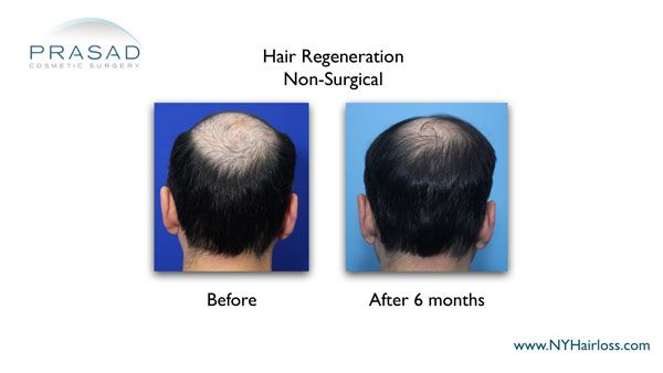 improved hair quantity 6 months after hair regeneration treatment
