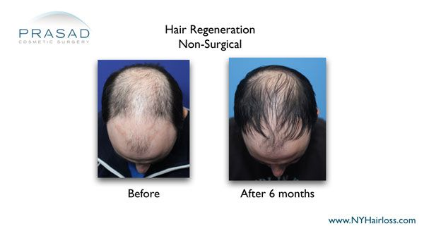 best hair restoration treatment 6 months after