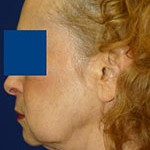 jowls before treatment