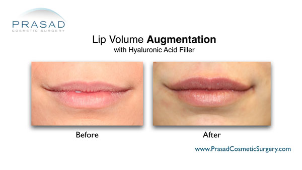 before and after lip volume augmentation