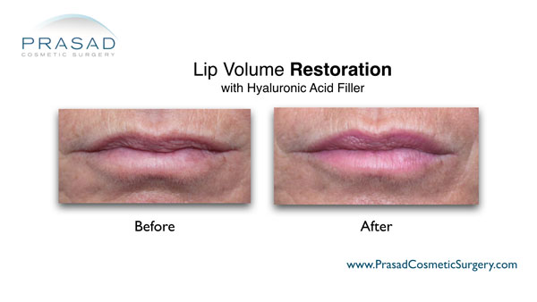 lip restoration filler before and after photo