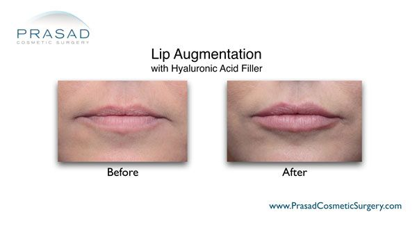 lip augmentation with HA filler before and after photo