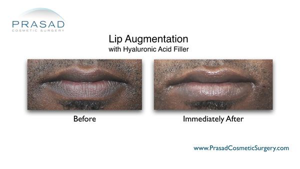 lip enhancement on male lips before and after photo