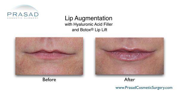 lip augmentation with HA filler and Botox lip lift