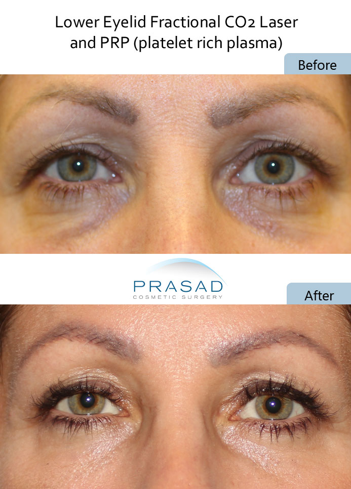 before and after dark circles under eyes treatment with PRP