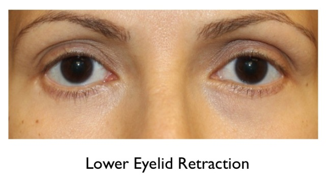 Lower Eyelid Retraction