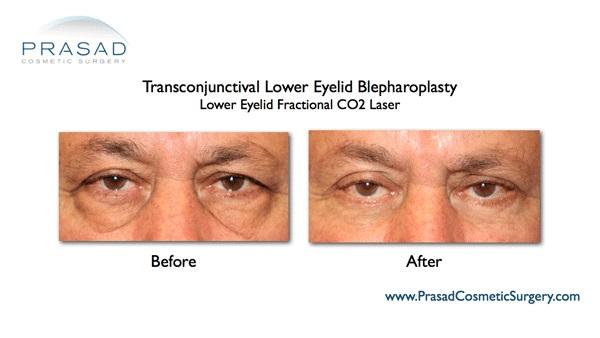 Lower eyelid surgery-Co2 laser-Dr Prasad