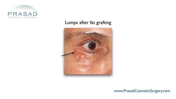 lumps after fat grafting