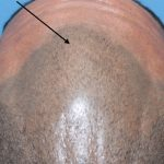 micro pigmentation with hair loss
