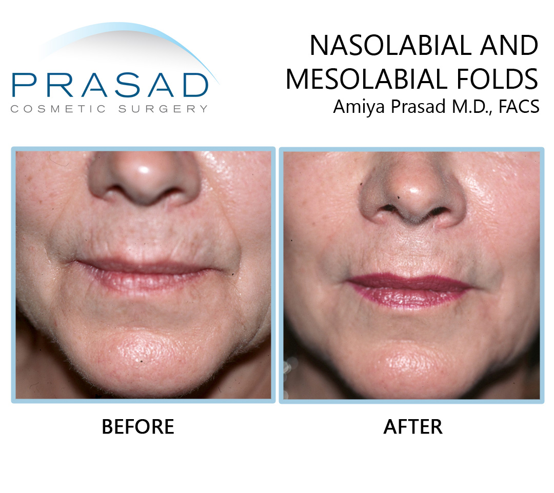 before and after hyaluromic acid fillers on nasolabial and mesolabial folds