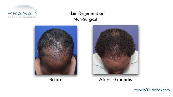 non-surgical treatment for female pattern hair loss