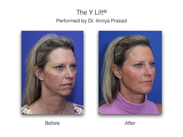 Non surgical facelift -Y Lift-before and after-three quarters view-performed by Amiya Prasad MD