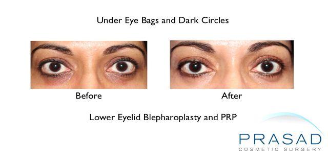PRP Eye Bags Still