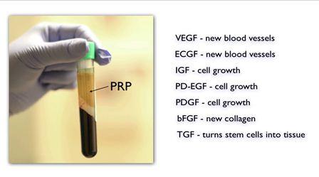 PRP growth factors still