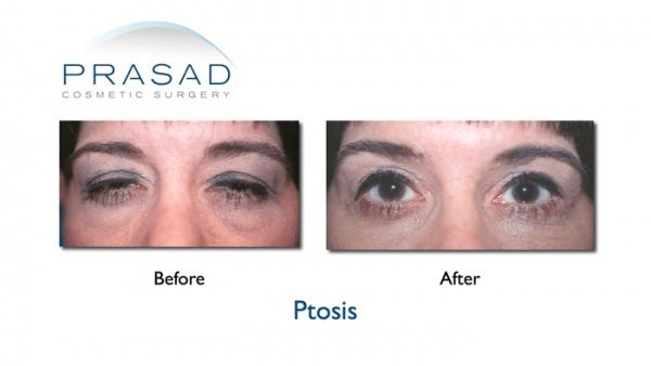 Ptosis surgery performed by Dr. Prasad