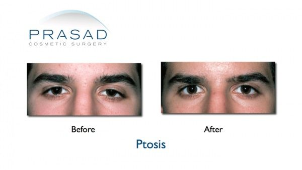 Ptosis Surgery-Before and After