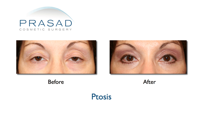 Ptosis surgery- before and after Photo