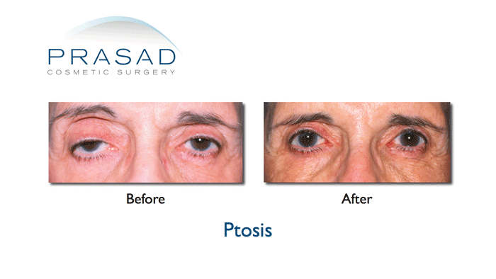 eyelid ptosis surgery in adult before and after