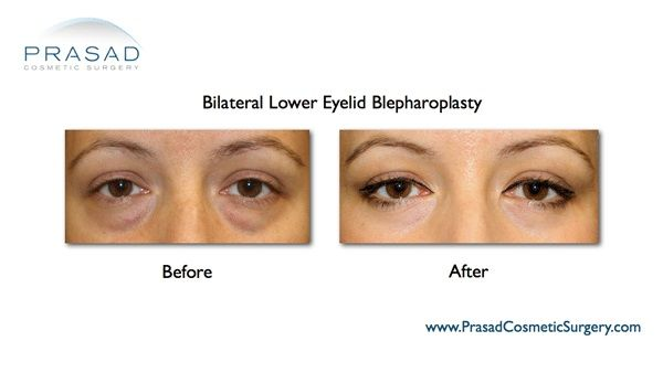 Puffy eyes Removal -eye bag surgery