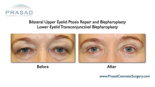 Puffy eyes-Removal surgery