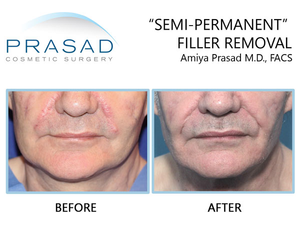 semi-permanent filler removal after complications