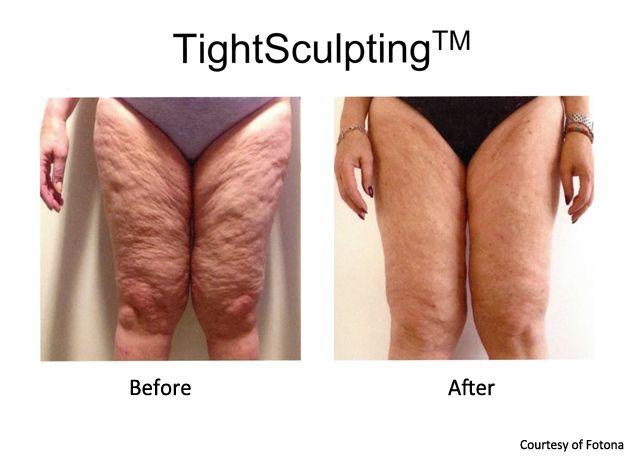 Body Laser Skin Tightening Prasad Cosmetic Surgery Nyc
