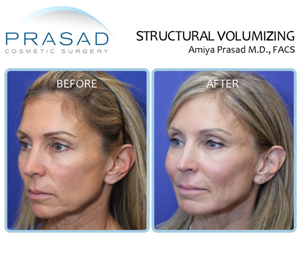 Structural Volumizing before and after