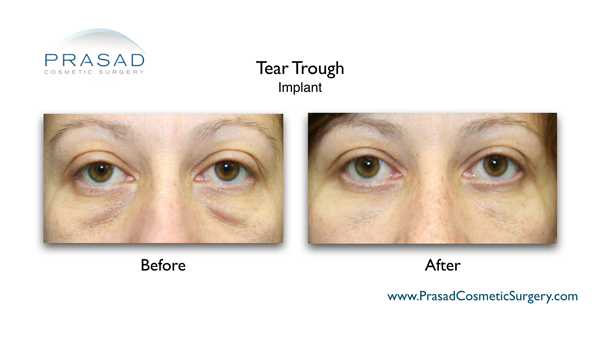 before and after Tear trough implant surgery