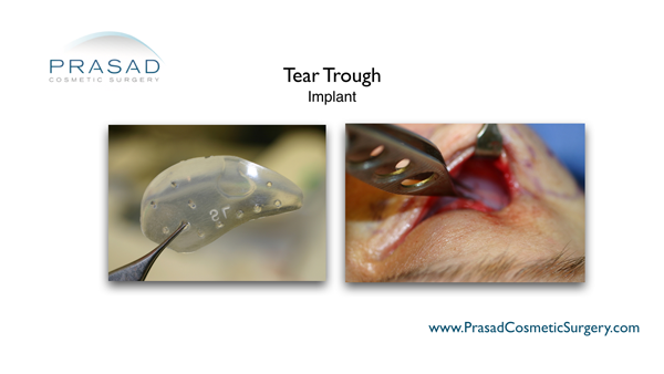 Dr. Amiya Prasad performs tear trough implant surgery using the transconjunctival method