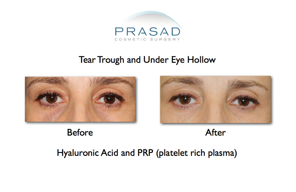 Before and after tear trough and under eye hollow results on female patient