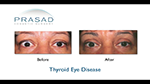 before and after photo of patient undergoes thyroid eye surgery